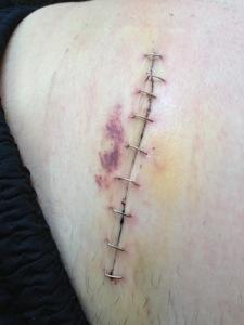 Bild: Mage med stygn/agraffer efter blindtarmsoperation